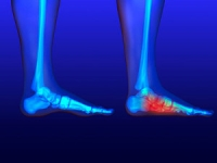 What Causes Flat Feet?