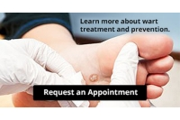 Plantar Warts Can Be Treated!
