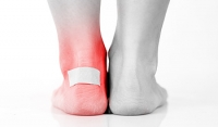 Types of Blisters and Dressings