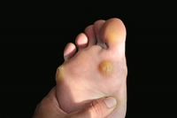 Ways to Help Treat the Corns on Your Feet
